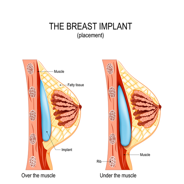 Breast Augmentation Lancaster