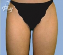 Liposuction Before and After | Valencia Plastic Surgery